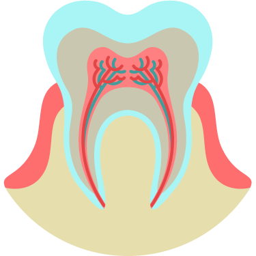 Root Canal Treatment (RCT) Icon